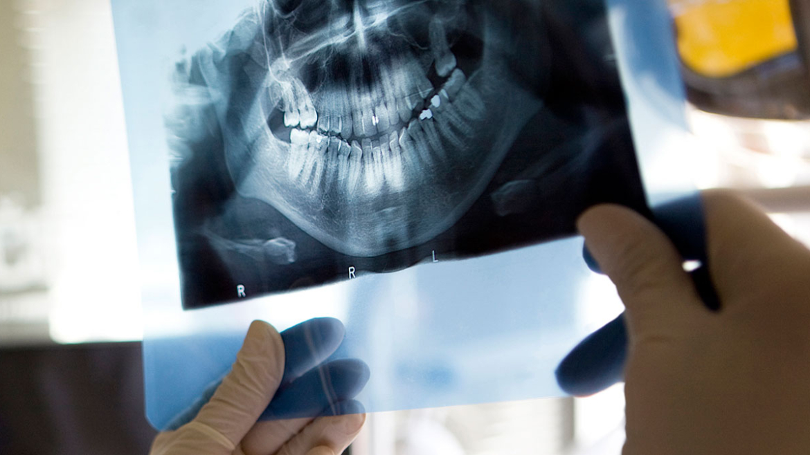 Root Canal in Kenora
