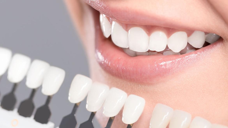 Teeth Whitening in Kenora