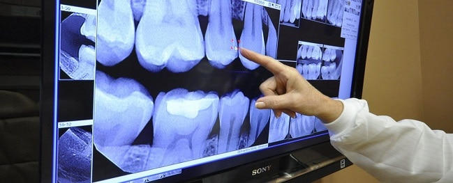 Dentistry - Digital X-Rays