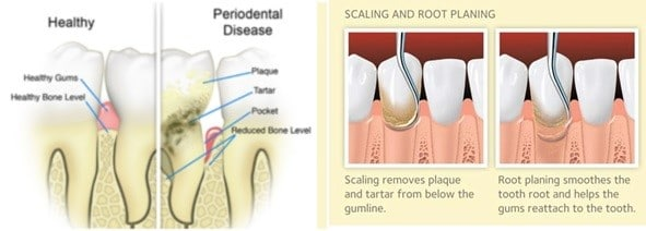 Dental Hygiene- Scaling and Root Planning