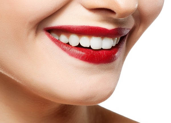 Smile Makeover - White Spot Removal